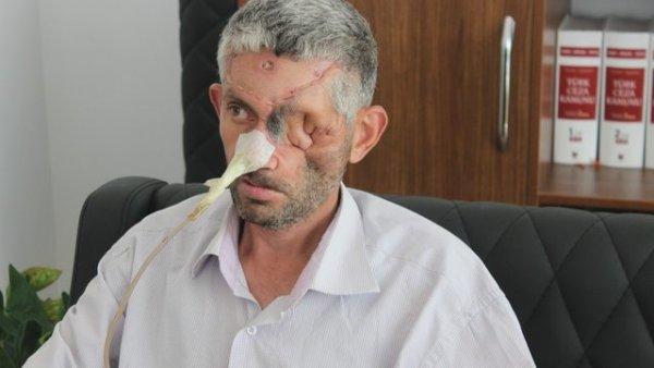 Hastaneye dişini çektirmeye gitti gözünü kaybetti
